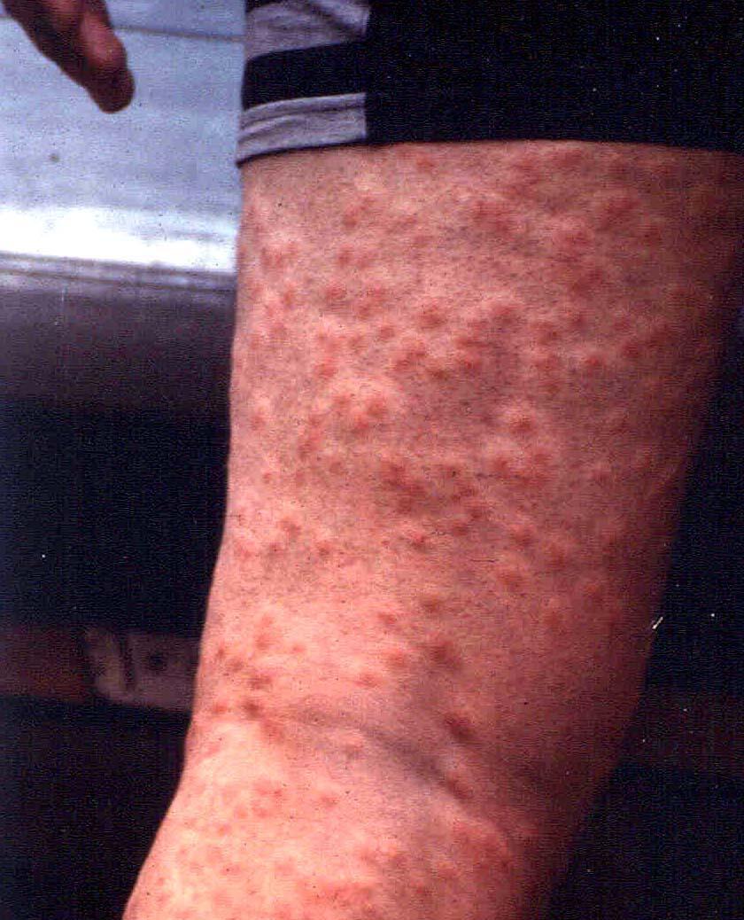 Allergisk reaksjon på klorvann